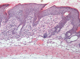 Histopathology of skin inflammation in the Psoriasis mouse model.