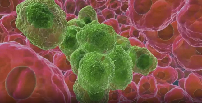 Image of cancer cells surrounded by healthy cells.