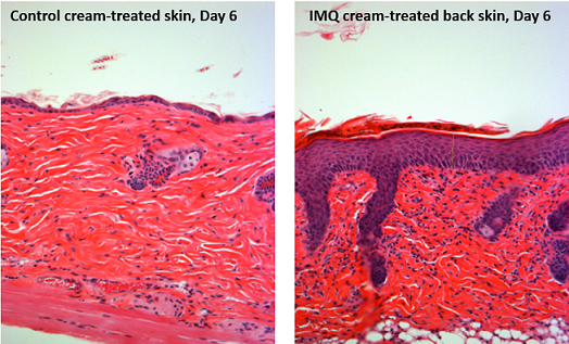 H&E stained sections of back skin of mice treated with vehicle Vaseline and 5% imiquimod cream