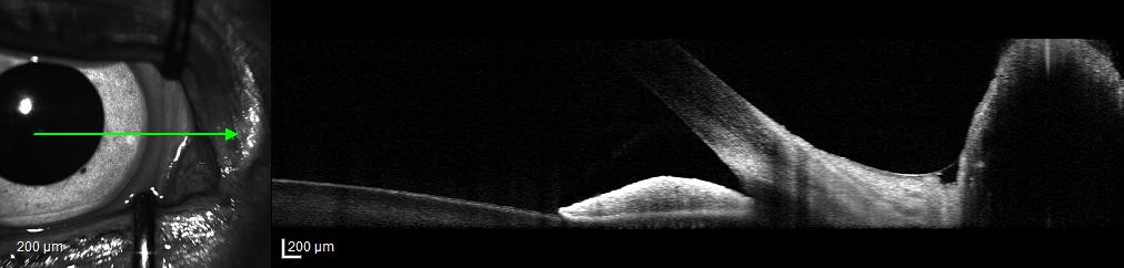 imaging of iridoconeal angle