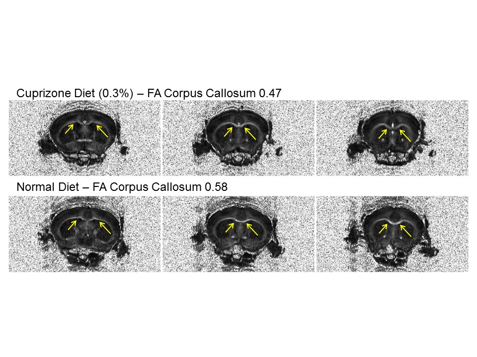 Apparent pathology in white matter of mice on cuprizone diet (demyelination) already at 3 weeks as evidenced by DTI-MRI.