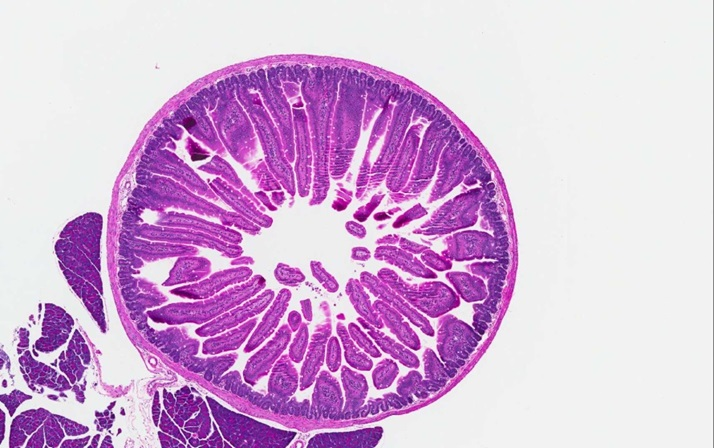Duodenum transverse section from a control group