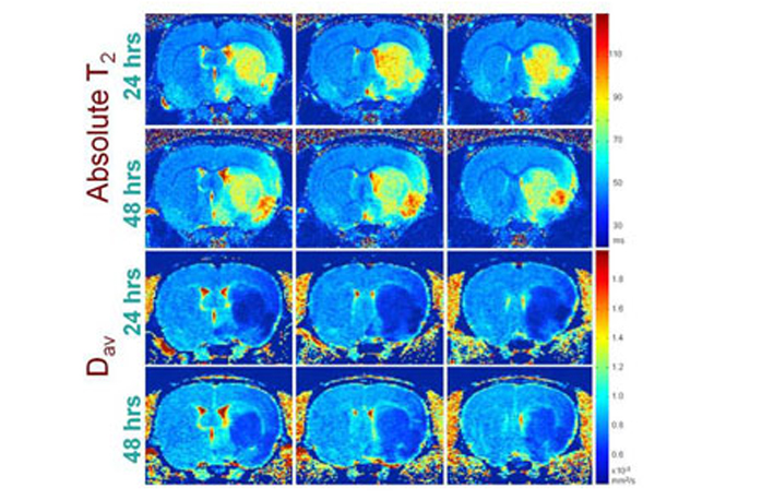 Absolute T2 and diffusion imaging at 24 and 48h after stroke in rats