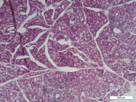 Histopathology of dexamethasone-treated lacrimal gland