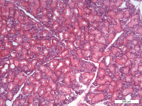 Histopathology of dexamethasone-treated salivary gland
