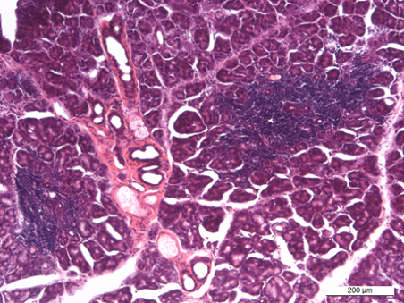 Histopathology of diseased lacrimal gland