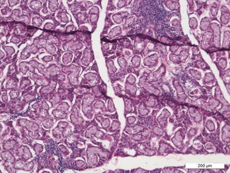 Histopathology of diseased salivary gland