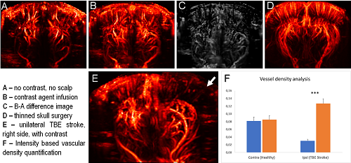 A figure illustrating how functional ultrasound imaging (fUS) is used to model thromboembolic stroke in rat brain. Images include different techniques to obtain higher contrast fUS brain images.