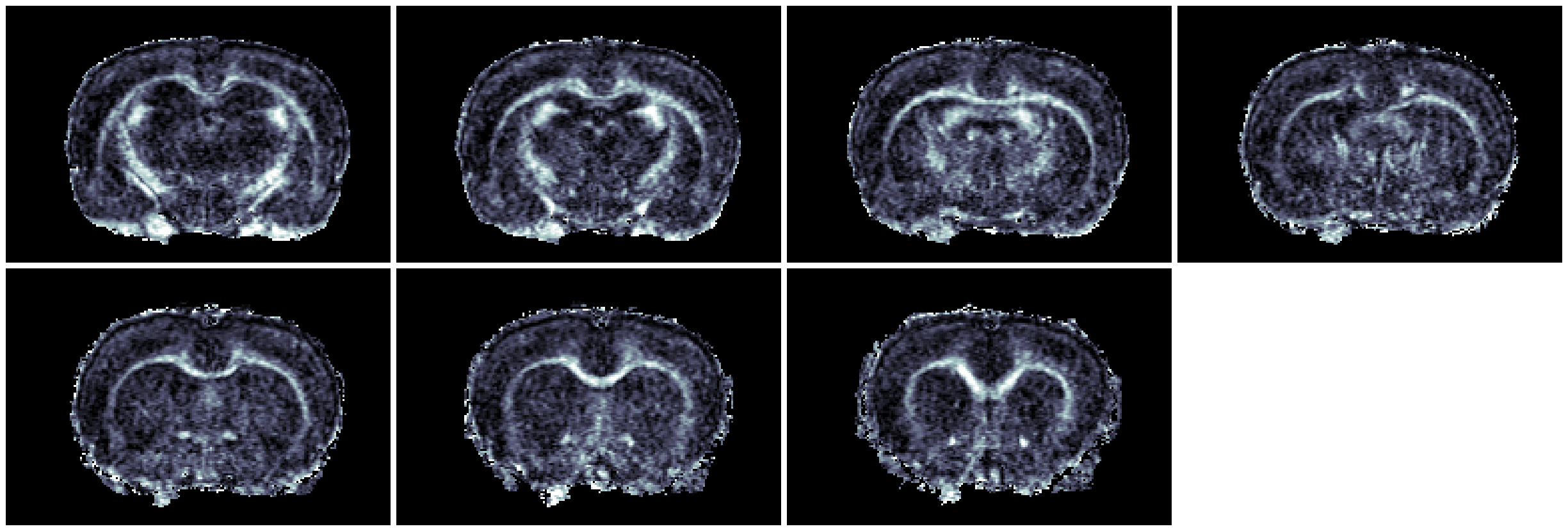 4-segment spin-echo diffusion tensor imaging of a lesion induced by unilateral injection of lysophospatidylcholine (LPC) into the corpus callosum
