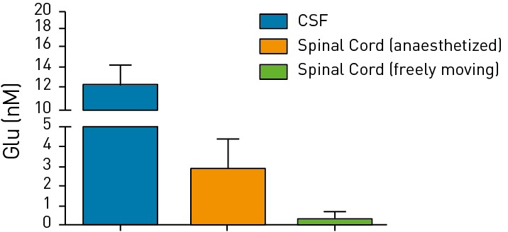Bar graph showing levels of glutamine in the cerebrospinal fluid and spinal cord of either immobilized or freely moving animals.