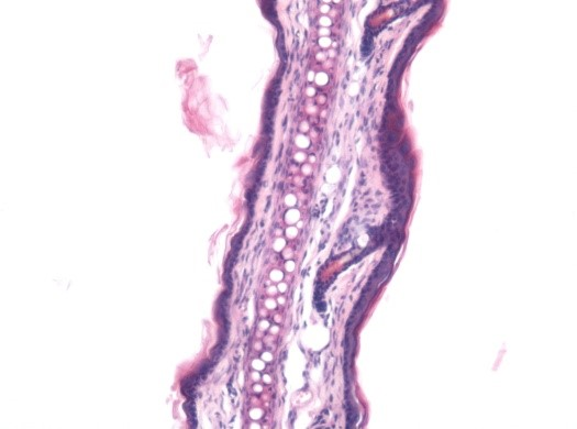 Histopathology (H&E staining) image of control untreated skin group, in the Capsaicin induced irritant contact dermatitis model