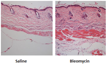 Histopathology showing the increase in dermal thickness in skin samples from bleomycin-treated animals compared to saline-treated controls