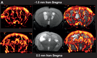 Brain scans from scientific poster translational imaging findings in a pediatric patient-derived orthotopic xenograft brain tumor model.