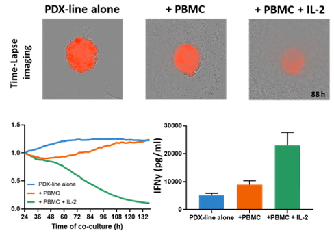 PBMC - mediated tumor killing assay in 3D format, demonstrating killing over time with or without IL-2 stimulation.