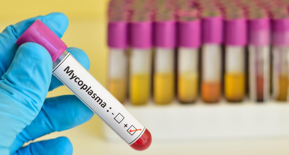 The Acid Test for Mycoplasma Contamination