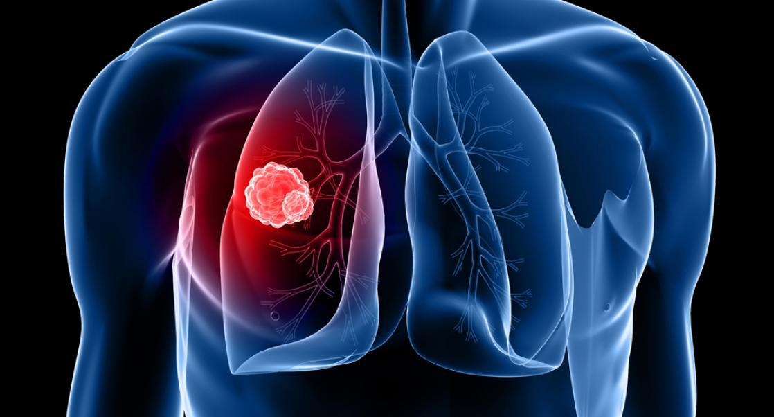 Bringing Lung Cancer Into Focus