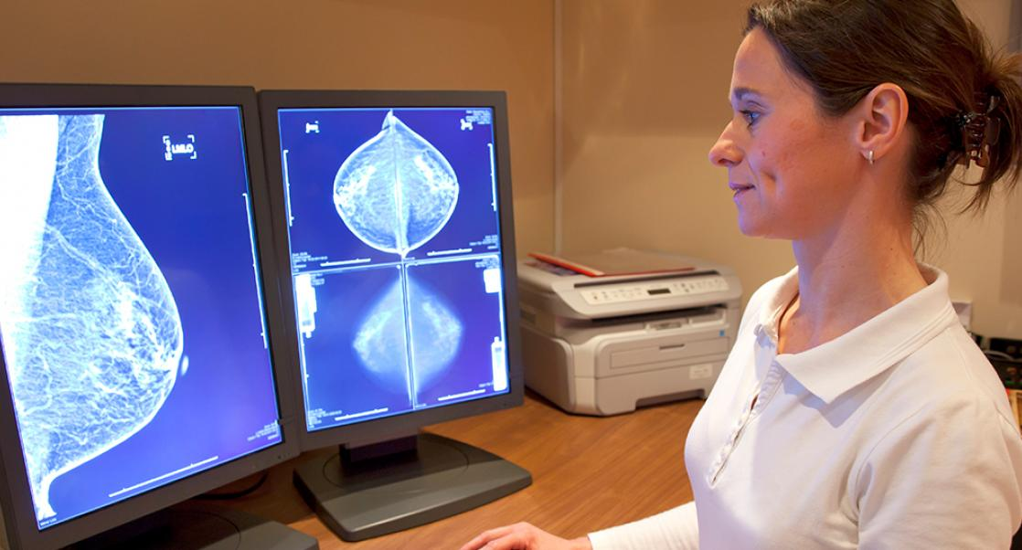 Mammograms Go Glam (Abstract Science June 3-7)