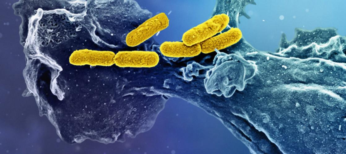 bacteria that causes an infectious disease